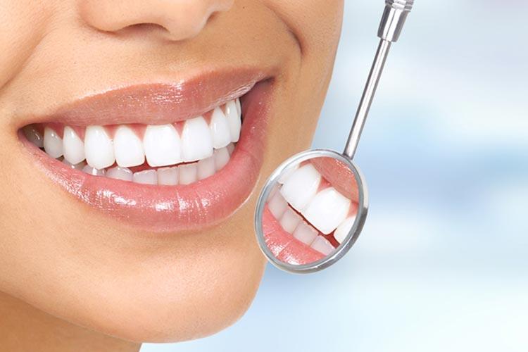 Igiene dentale e pulizia dei denti a Foggia