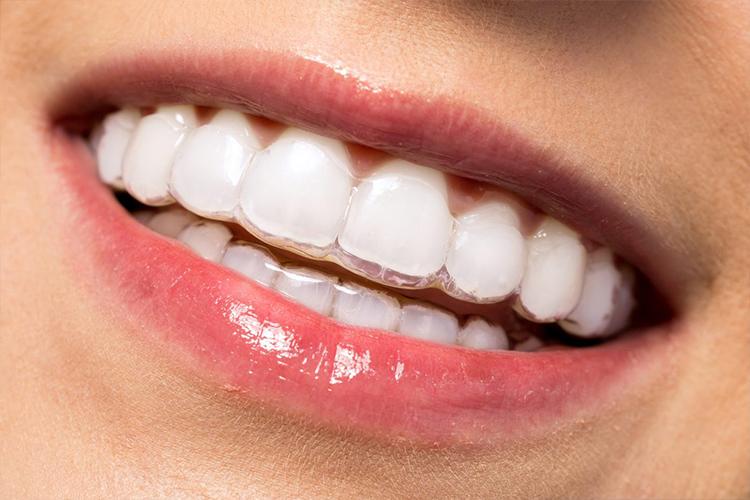 ortodonzia apparecchi per i denti foggia